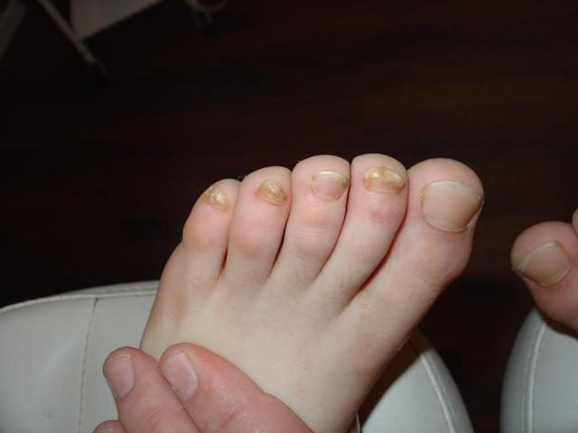 Грибок стопы у ребенка: фото, симптомы и лечение, профилактика заболевания