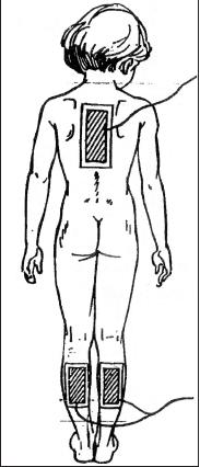 Электрофорез для грудничков  и детей до года с эуфиллином, магнезией, бромом
