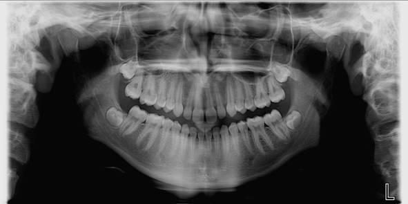 Рентген при планировании беременности: можно ли делать рентгенографию зуба, ноги и прочего?