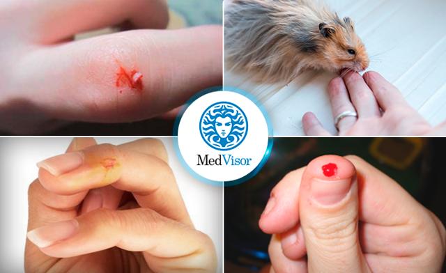 Ребенка укусил хомяк до крови: что делать, какие средства могут помочь