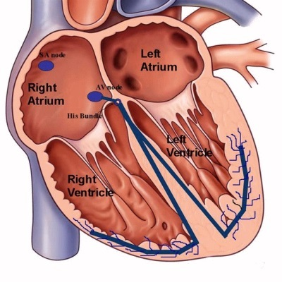 Дополнительная хорда в сердце  у ребенка (ДХЛЖ) - что это такое и чем она опасна?