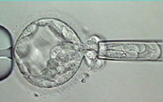 ПГД эмбрионов при ЭКО: цели исследования, особенности проведения генетического анализа