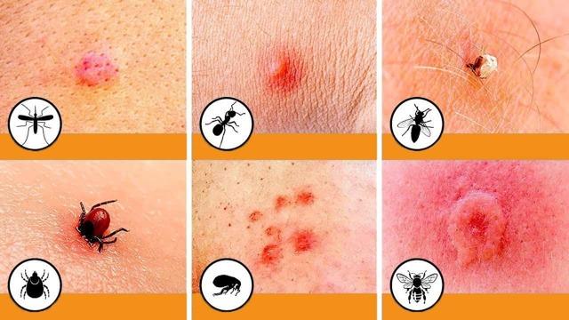 Чем мазать укусы блох у детей: симптомы и лечение аллергии, фото, обработка кожи