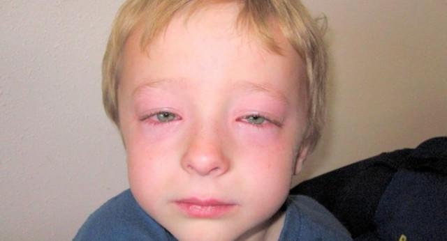 Опухла переносица у ребенка, отекли лоб и глаза: причины, сопутствующие симптомы и лечение