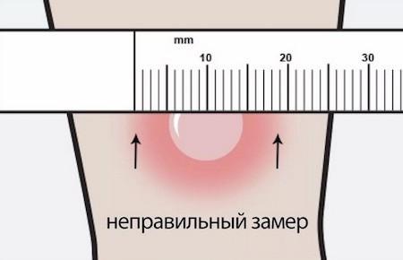 Через сколько дней проверяют Манту у ребенка  и как измерить ее правильно в домашних условиях?