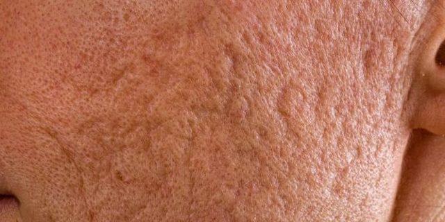 Как убрать шрамы после ветрянки у ребенка - чем мазать кожу, если остались следы, красные пятна?