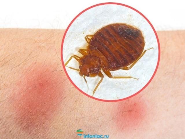 Чем лечить укусы комаров у детей , что делать при опухоли и покраснении, как снять зуд?