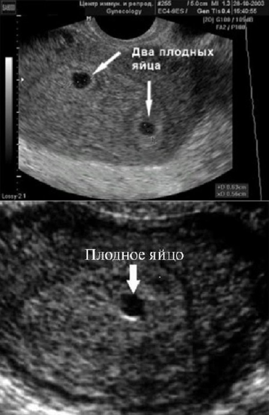 Эмбрион не визуализируется: что это значит, почему на 5–6 неделе беременности не видно зародыша?