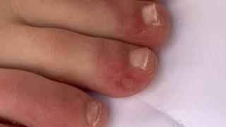 Сыпь у ребенка на руках и ногах , маленькие точки в виде прыщиков по телу - фото с пояснениями