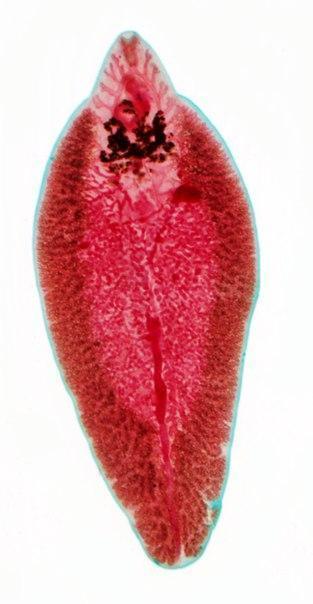Глисты у детей : фото с пояснениями, как выглядят виды гельминтов в кале, симптомы и лечение