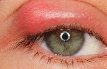 Ячмень при беременности: лечение, возможные последствия для глаз, профилактика