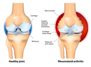 Воспаление тазобедренного сустава у ребенка - симптомы, причины и лечение артрита