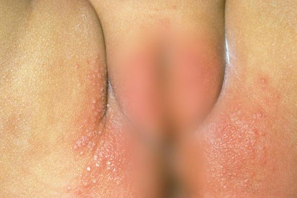 Сыпь у новорожденного и грудничка  в виде прыщиков на лице и по всему телу: фото с пояснениями