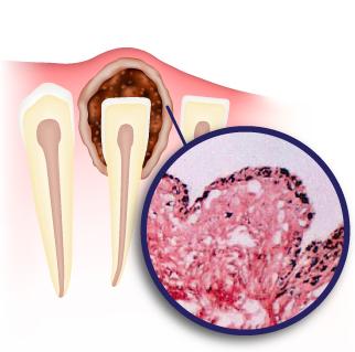 Киста на десне у ребенка при прорезывании или на молочном зубе: фото, симптомы, лечение