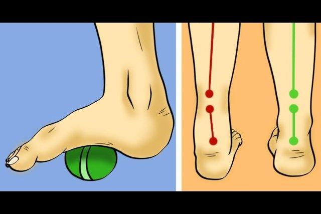 Варусная деформация стопы у детей  - фото и симптомы, способы лечения, подбор обуви