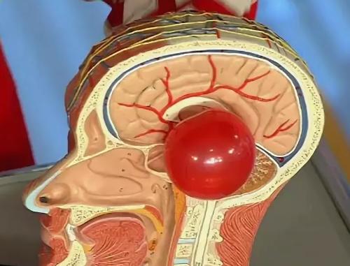 Кисты сосудистых сплетений головного мозга у плода: причины и последствия
