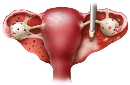 Лапароскопия перед ЭКО: зачем проводят, через сколько времени после процедуры можно беременеть?
