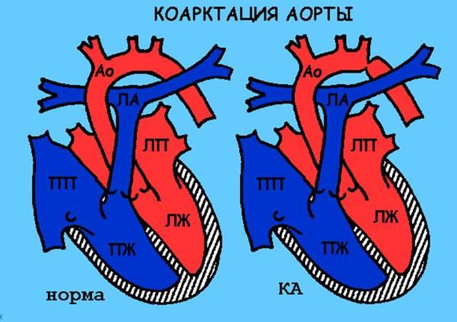Дефект межжелудочковой перегородки у новорожденного в сердце - последствия и лечение мышечного ДМЖП