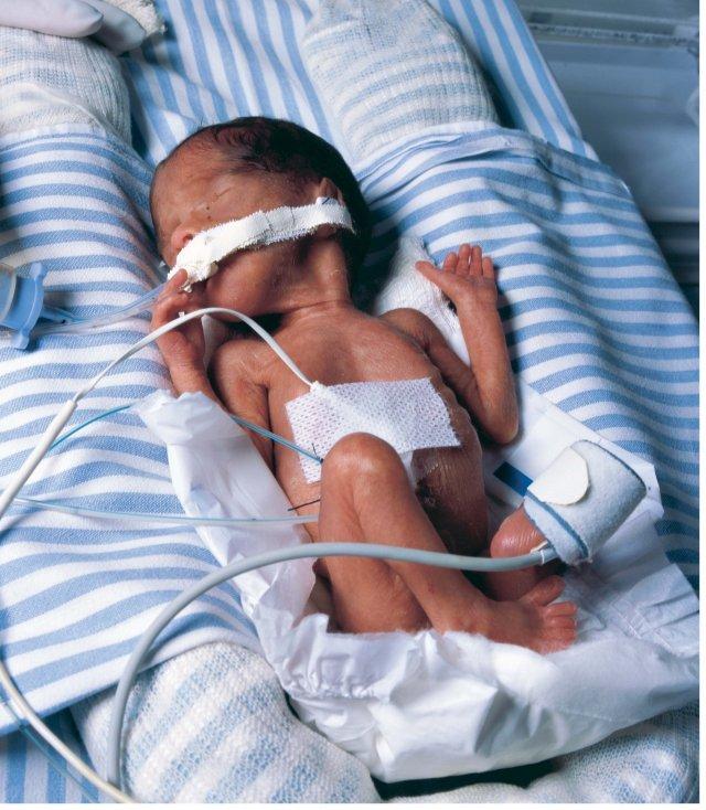 Влияние наркотиков на плод и его развитие: вред наркогенных веществ для ребенка