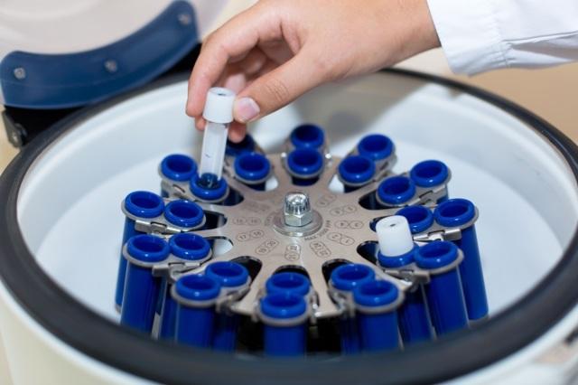 Пиоспермия: что это такое у мужчин, возможна ли беременность и каким должно быть лечение?