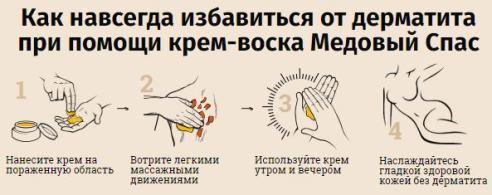 Пероральный дерматит у детей: лечение, фото сыпи вокруг рта, на подбородке и лице