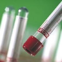 Положительный тест после аборта или выкидыша на раннем сроке: уровень ХГЧ и как долго он падает