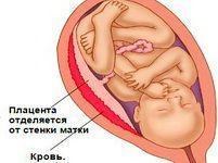 Кальцинаты в плаценте: что это такое, опасно ли подобное явление?