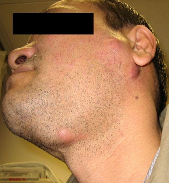 У ребенка опухла шея с одной стороны под ухом: причины, сопутствующие симптомы и лечение