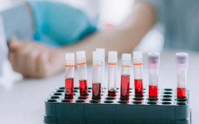 PLT в анализе крови - норма у детей, расшифровка, причины повышенных тромбоцитов