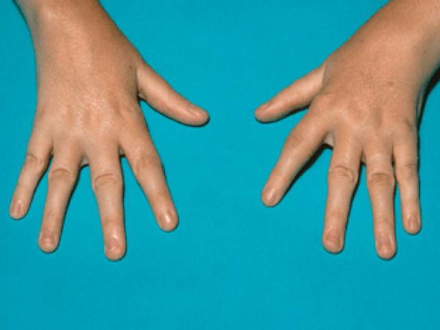 Инфекционный артрит у детей и аллергический: характерные симптомы и методы лечения