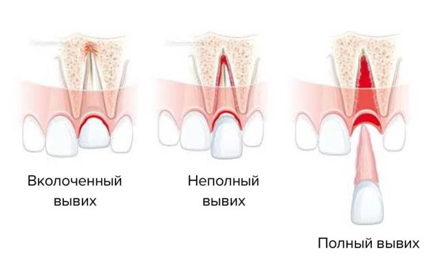 Ребенок ударился челюстью, зуб потемнел и на десне образовалась гематома: что делать?
