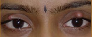 Шишка на веке у ребенка (верхнем или нижнем): причины покраснения на глазу, лечение халязиона