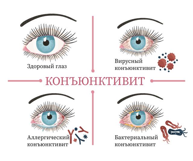 Аденовирусный конъюнктивит у детей - симптомы и лечение заболевания глаз
