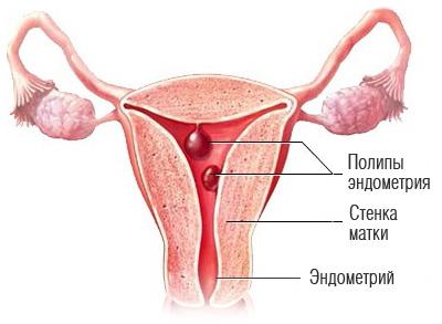 Месячные при миоме матки: может ли быть задержка, что делать, если выделения очень обильные?