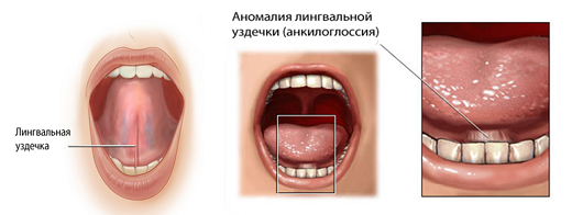 Подрезание уздечки под языком у детей: как и в каком возрасте делают пластику и зачем это нужно?