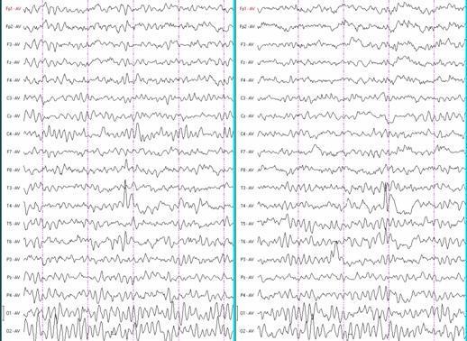Роландическая эпилепсия у детей: симптомы, причины и лечение доброкачественного вида заболевания