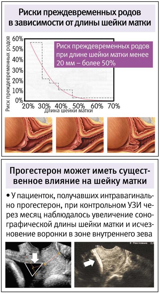 Утрожестан при укорочении шейки матки: влияет ли препарат на ход беременности и плод?