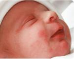 Эритема новорожденных: токсическая и физиологическая формы, фото, причины и лечение