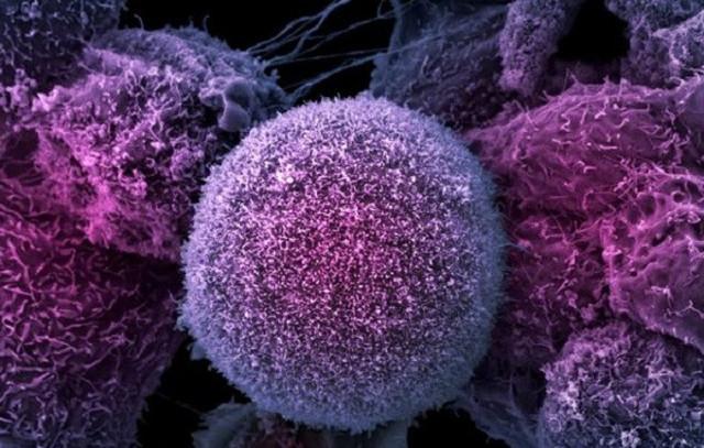 Повышены лимфоциты в крови у ребенка до года - что это значит и о чем говорит?