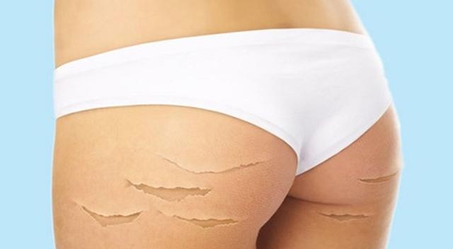 Растяжки при беременности: когда появляются, внешний вид с фото, способы избежать, как убрать