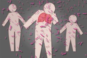Реакция Манту у детей: норма размеров по возрасту в 1-3 года с фото