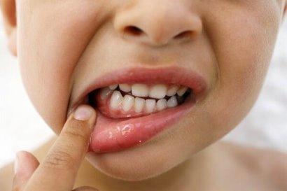 Гингивит у детей: симптомы и лечение, фото красных, воспаленных, опухших десен