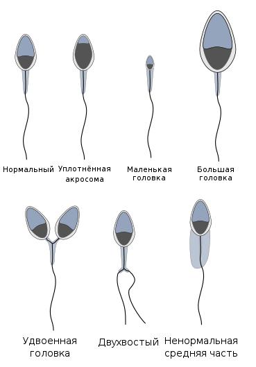 Тератозооспермия: что это такое и как лечить, возможна ли беременность?