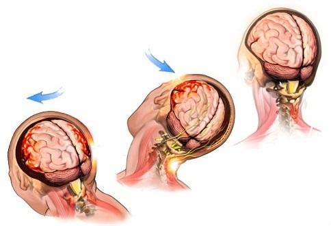 Сотрясение мозга у ребенка: симптомы и признаки, лечение в домашних условиях, последствия