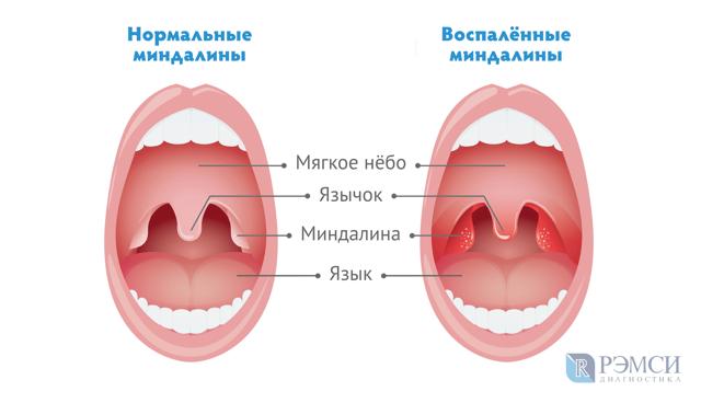 Герпесная ангина у детей: лечение, симптомы с фото горла и сыпи, подбор антибиотиков