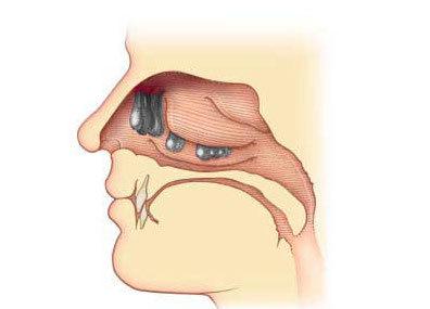 Полипы в носу у ребенка: фото наростов, симптомы, причины и лечение