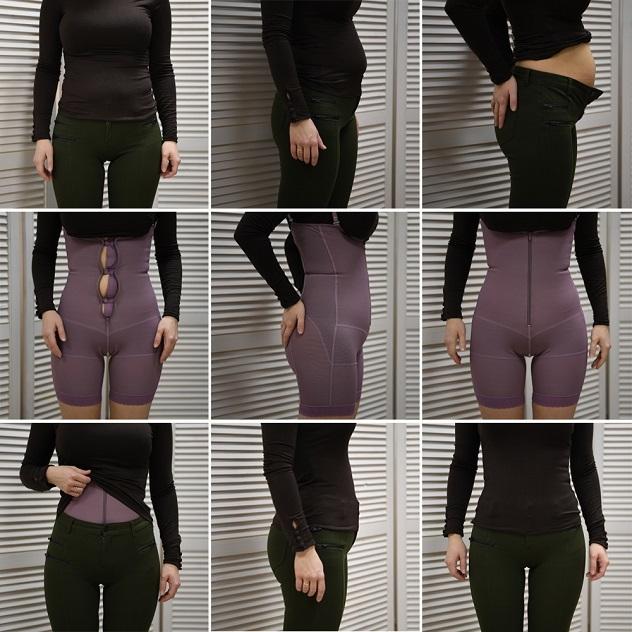 Утягивающее белье после родов и кесарева сечения для живота и бедер: можно ли носить, как выбрать?