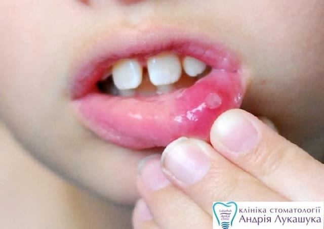 Стоматит у детей: симптомы с фото и лечение, первая помощь, профилактика болезни во рту