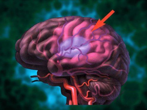 Гипоксия плода: симптомы и последствия внутриутробного кислородного голодания, причины и лечение