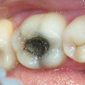 Чувствительность зубов во время беременности: что с ней происходит на ранних и поздних сроках?